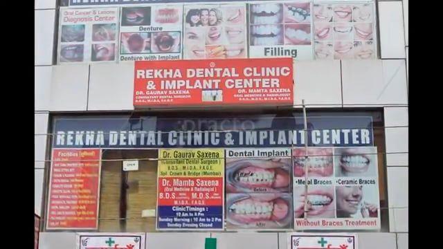 Dentist in Ghaziabad - Rekha Dental Clinic  Dental Clinic in Ghaziabad , Dentist in Ghaziabad  Rekha Dental Clinic & Implant Center (Dentist in Ghaziabad)  Address:  House No 622, First Floor, Satyam Enclave , New Kotgaon, Opp Rakesh Marg, Ghaziabad, Uttar Pradesh 201001  Phone:099111 76654  Facebook : www.facebook.com/mamtaraghav21/  Website : business.google.com/website/dentist-in-ghaziabad/  Google Plus : plus.google.com/b/111129280822610341448/ Wiki…