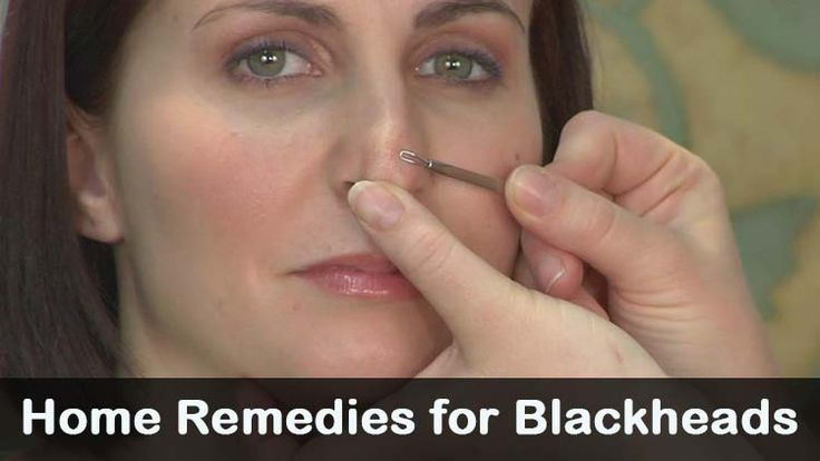Top list of natural and ayurvedic home remedies for blackheads along with tips and precautions. How to get rid from blackheads quickly step by step process.