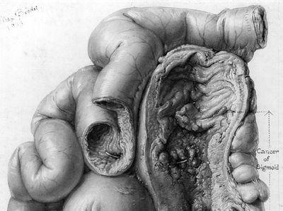 Max Brodel: Johns Hopkins Medical Illustration