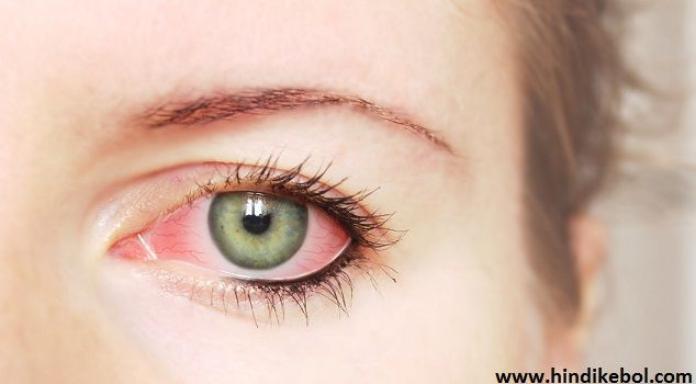 Eye Flu Treatment in Hindi,Eyes Infection Treatment in Hindi
