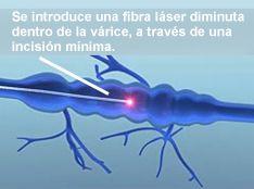 Várices Láser, cirugía láser de várices, flebología láser, fotos
