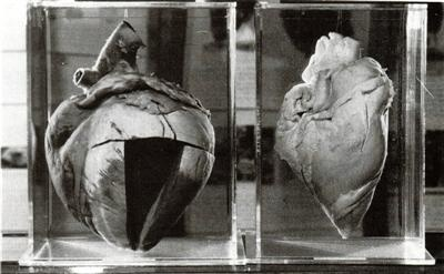Death proved how big-hearted the champion Australian racehorse Phar Lap really was. On the right is the heart of an average horse, a cavalry mount, weighing about 3.5 - 4kg (7-8 pounds). On the right is Phar Lap's heart which weighed in at 6.35kg or 14 pounds. His heart is on display at the National Museum in Canberra the capital of Australia..