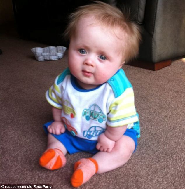Primordial Dwarfism Baby 100 best images about ...