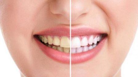 20 Cara Ampuh Memutihkan Gigi Secara Cepat dan Alami