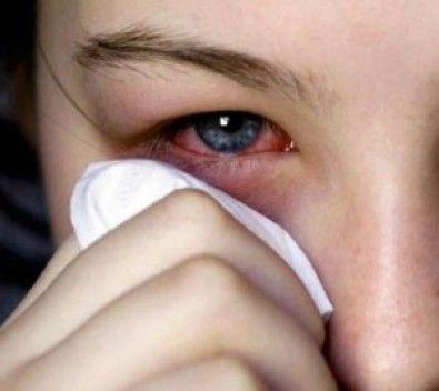 Conjuntivitis: síntomas y recomendaciones para evitar el contagio - Hospital Alemán