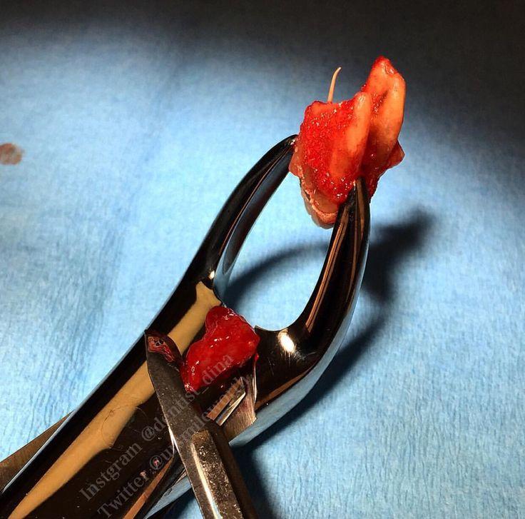 #surgical #dental #extraction of this #mandibular first #molar. #odonto #odontologia #cirugiaoral #extractionart #dentist #dentistry #dentista #denti #dente #dientes   #oralsurgeon #exodoncia #exodontia #endodoncia #endodontia #rootcanal #smile #dentalgram #dentalphotography #dentalart