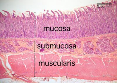 histology duodenum | Small Intestine Histology - Duodenum (labels) - histology slide -