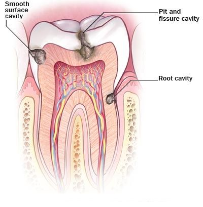 Home Remedies For Cavities - Natural Treatments & Cure For Cavities | Search Home Remedy