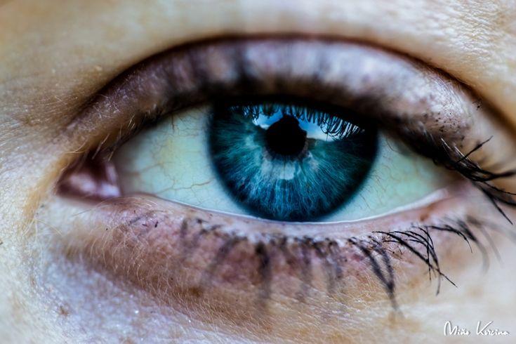 Histamínová intolerancia mojimi očami