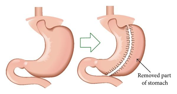 Pin On Bariatric Mexico Surgery