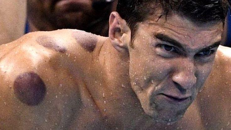 Muchos quizás habrán notado en las Olimpiadas de Río 2016 las raras marcas rojas en la piel del ícono de la natación, Michael Phelps y de otros atletas estadounidenses. ¿Qué son y para qué sirven?