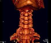 Vertebral artery   Radiology Reference Article   Radiopaedia.org