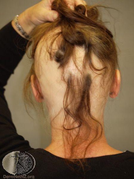 Skin signs of thyroid disease - alopecia areata