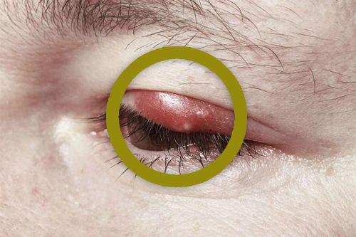 Ein Gerstenkorn ist eine Entzündung der Drüsen an den Augenlidern, diese ist nicht schwerwiegend kann jedoch schmerzhaft und sehr lästig sein. Der Auslöser ist meist eine bakterielle Infektion.