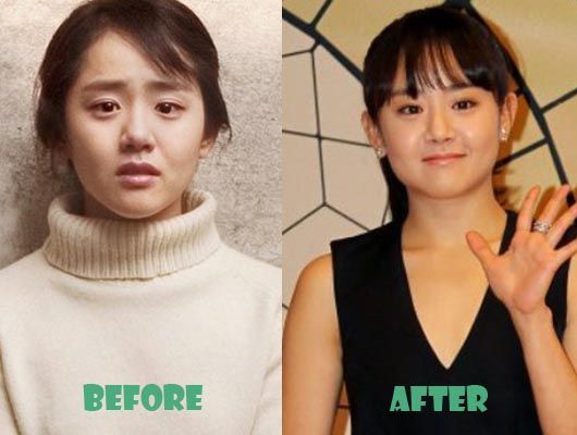 Moon Geun Young Plastic Surgery