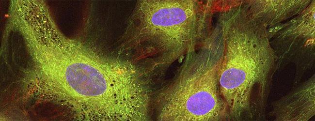 ¿Podrían las #celulasmadremesenquimales hacer frente al rechazo de un trasplante de médula?  http://www.dencells.com/comunicacion/noticias/celulas-madre-mesenquimales-frente-al-rechazo-de-un-trasplante-de-medula/…