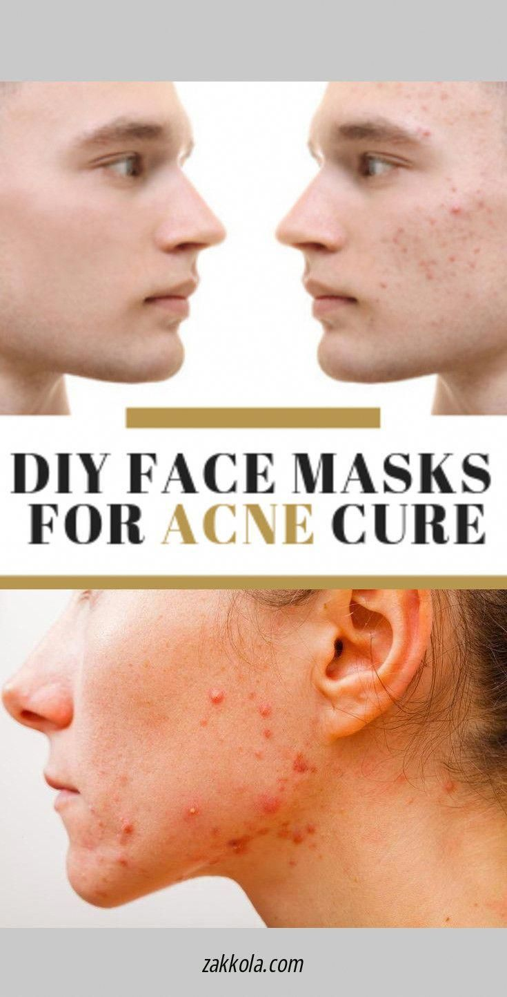 Daily Natural Skin Care Routine Backacne Back Acne Treatment Skin Care Pimples Acne
