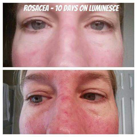 Luminesce serum (honestly, the whole skin care line! ) can help clear up eczema, acne, scars, stretch marks, heal wounds, and so much more!!!! Simply amazing is all I have to say! #inthismomentinternational on Facebook can help lead you in the right direction.  www.inthismoment.jeunesse.com
