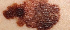 Cancro della pelle → Inizia la prevenzione → Condividi l'articolo e parlane!
