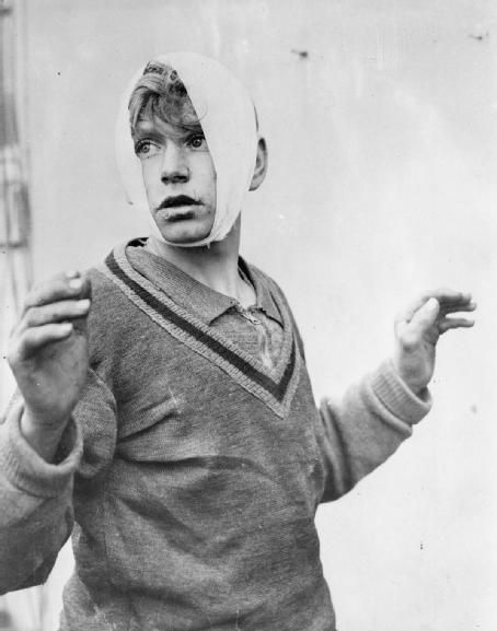 A young German wounded prisoner of war captured by the First US Army in Simmerath, Germany, December 1944.