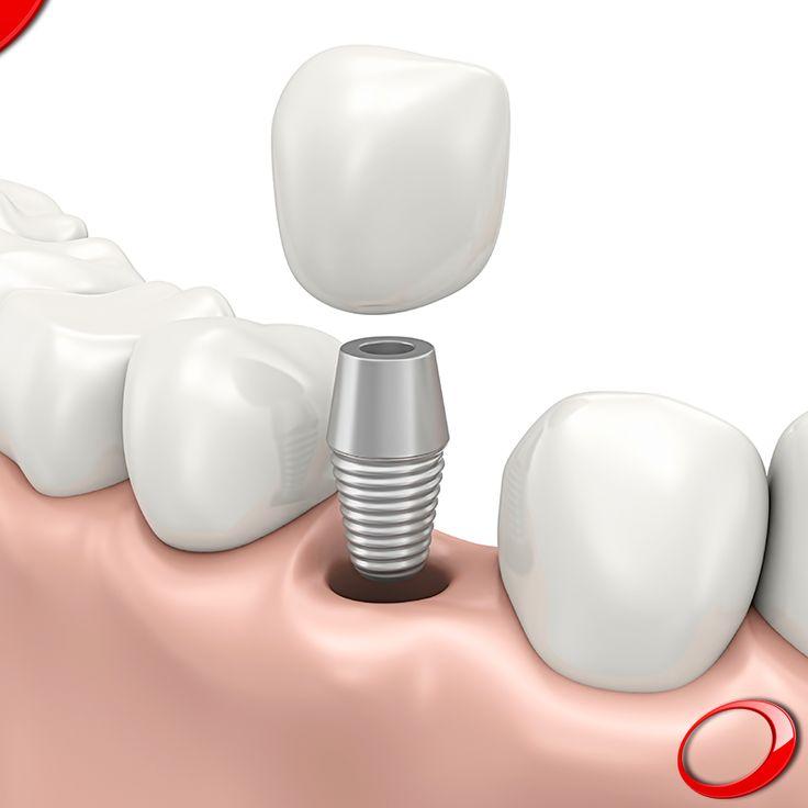 Les prothèses dentaires fixes et les implants dentaires vous donnent des fonctions semblables à celles des dents naturelles, ce qui vous permet de vous sentir à l'aise comme avant. Prenez sans attendre votre rendez-vous de contrôle et libérer votre sourire! :) …………………  www.pnid.fr #dentiste #implants #sourire #clinique  (Pour plus d'informations ou pour organiser une consultation d'évaluation, envoyez vos coordonnées par message privé)