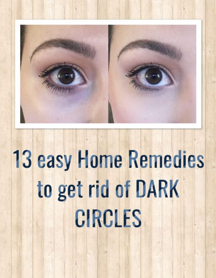 take away darkish circles with pure treatments