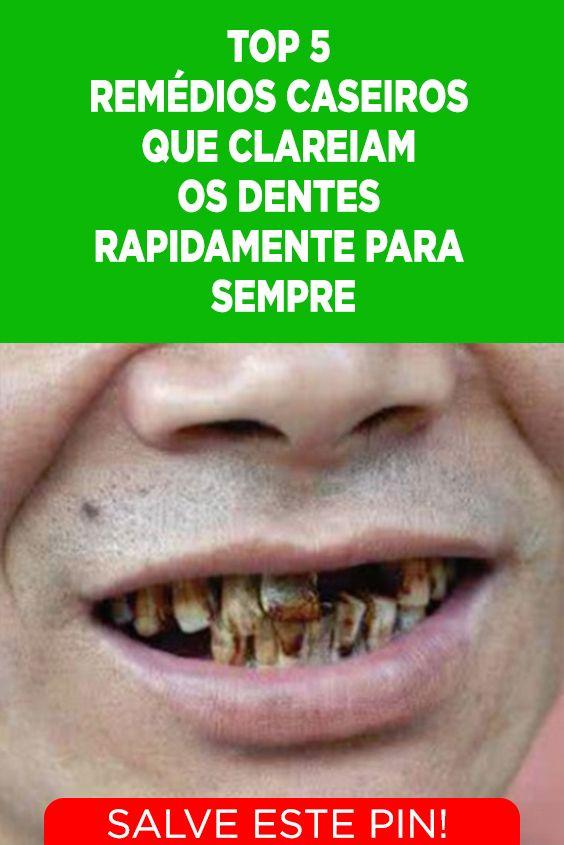 5 Remedios Caseiros Que Clareiam Os Dentes Conheca Os Remedios