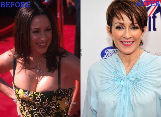 Patricia Heaton Plastic Surgery Photo Before and After - http://www.celeb-surgery.com/patricia-heaton-plastic-surgery-photo-before-and-after/?Pinterest