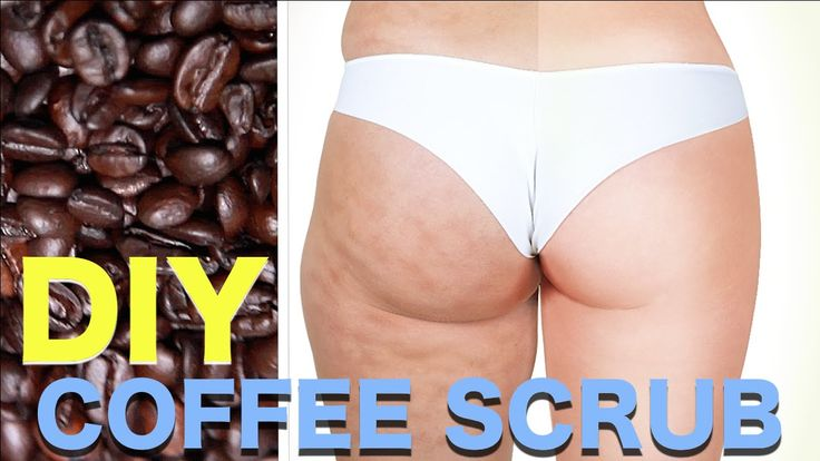 DIY Coffee Scrub for Cellulite, Stretch Marks & Acne Scars!!