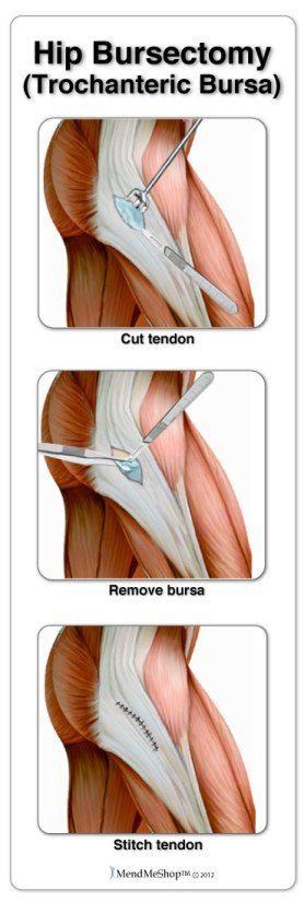 Many hip conditions are treated with arthroscopic surgery; bursitis, tendinitis, iliopsoas tendon tear, labral tear repair, cartilage trimming, snapping hip syndrome, and trimming bone spurs.