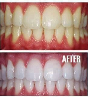 One teaspoon baking soda, one teaspoon peroxide- teeth whitening!!!!!!!
