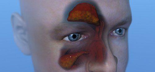 Что делать, если из носа течет желтая жидкость?