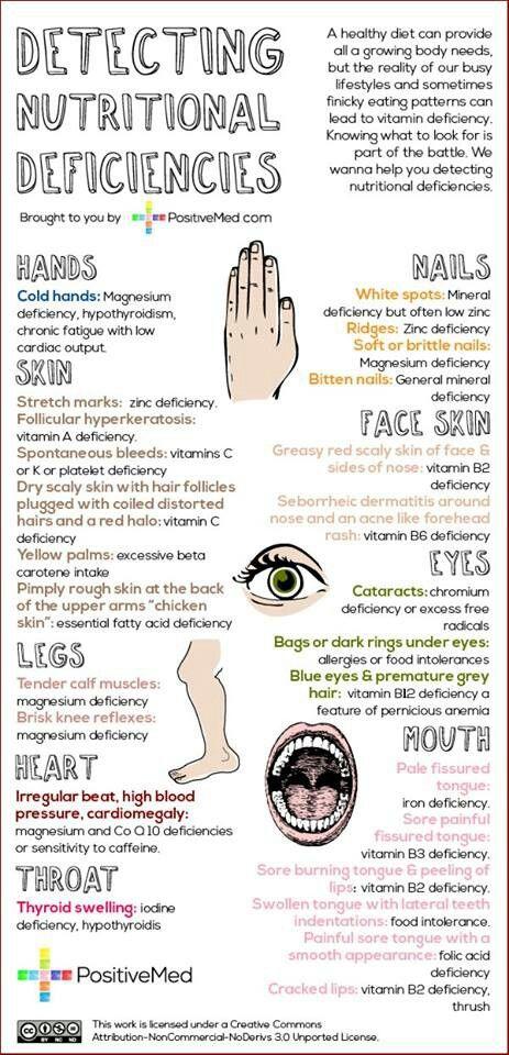 Very good information [ SkinnyFoxDetox.com ] #skinny #detox #health