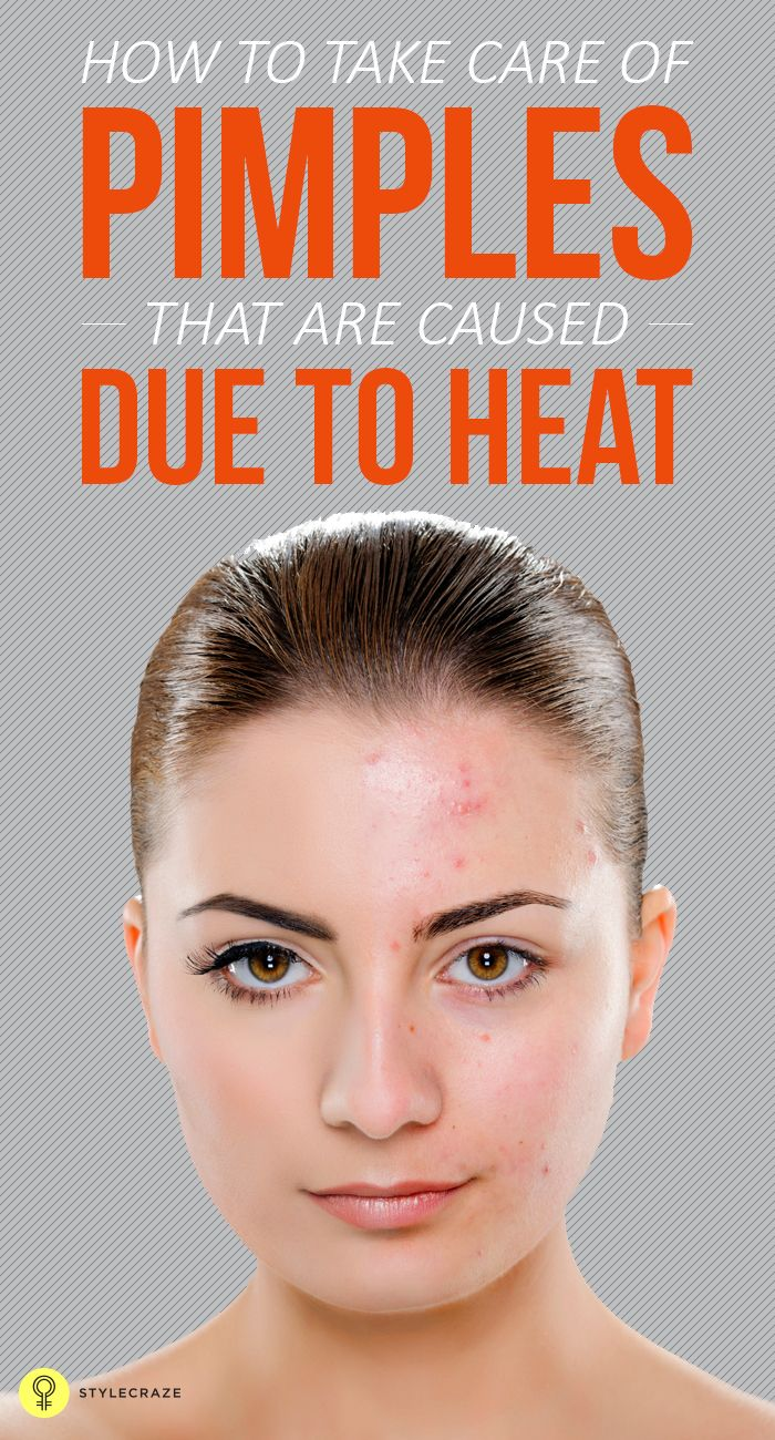 How To Take Care Of Pimples That Are Caused Due To Heat: Sebaceous or oil-producing glands in the body become hyperactive with rising temperatures and thus produce excess sebum or oil in the body that clog the skin's pores, thereby causing dirt, pollutants, microbes and dead cells to get accumulated in the follicles, resulting in skin inflammation and infections like dermal bumps and irritation, redness, pustules, blackheads, whiteheads, and acne. Some of the ways to help treat and prevent…