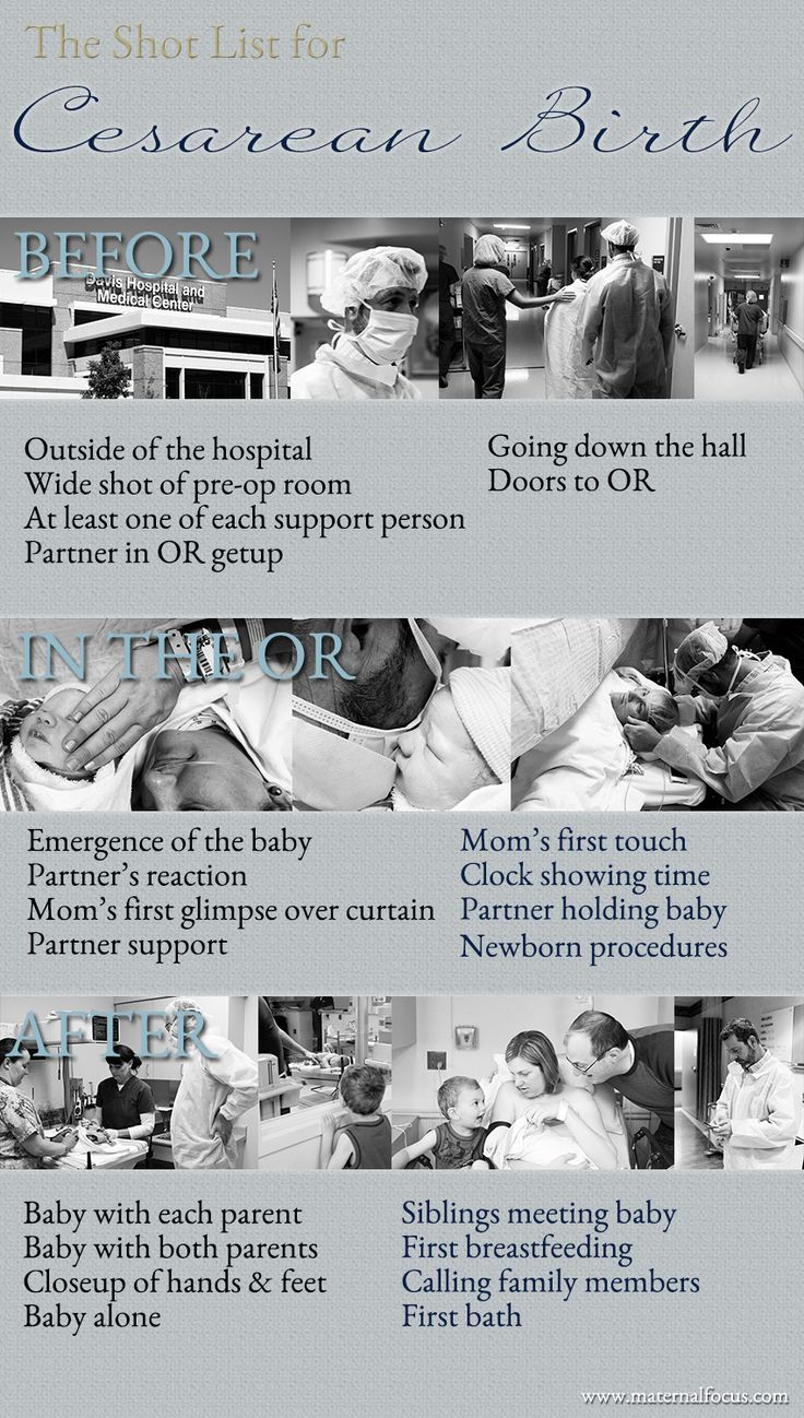 Cesarean Birth Photography Shot List