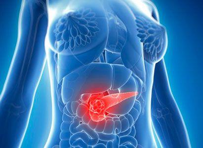 Disini tersedia obat herbal kanker pankreas berkualitas Internasional dan telah mendapatkan pengakuan dunia serta telah mendapatkan lisensi resmi dari Badan POM Republik Indonesia. http://daftaragenacemaxs.com/obat-herbal-kanker-pankreas/