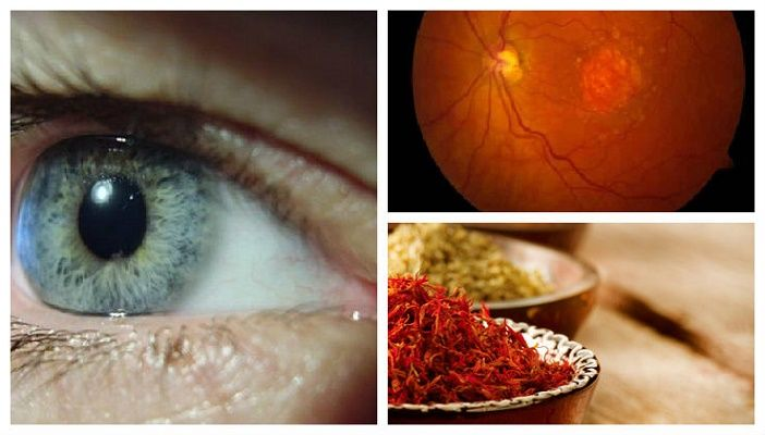 Um grupo de cientistas italianos descobriu que o açafrão-da terra (ou cúrcuma) pode ajudar a evitar e a curar a perda da visão pela degeneração macular, problema que se relaciona com a idade.