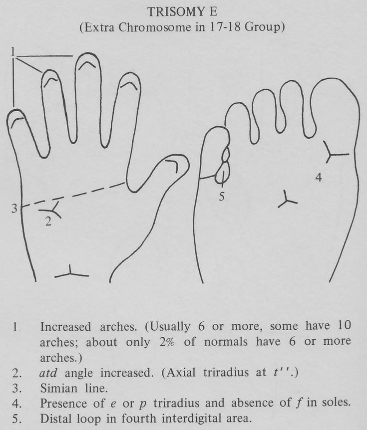 Hand chart for Edwards syndrome (trisomy 18) - Handbook of Clinical Dermatoglyphics (1971).