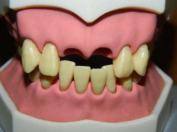 Vintage Educational Dental Display, Teeth, Mouth, Medical Educational Tool, Prop, Halloween, Loose tooth, Front Teeth Missing on Etsy, $65.00