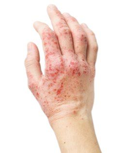 Cure Dyshidrotic Eczema Naturally
