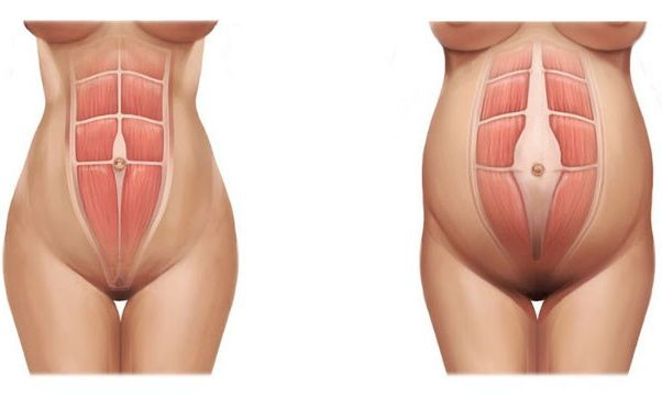 One component of the six-week postpartum visit is the assessment of the rectus abdominis muscles. Separation of these muscles is normal during pregnancy as the muscles and connective tissue stretch…
