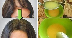 Un problema comune, che colpisce donne e uomini, è la caduta dei capelli. Questa condizione [Leggi Tutto...]
