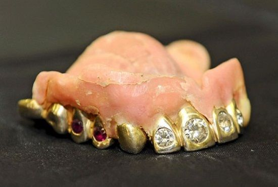 Dentaltown - Do you think you can chew carrots better with a denture is it's made with several carats of diamonds and rubies?
