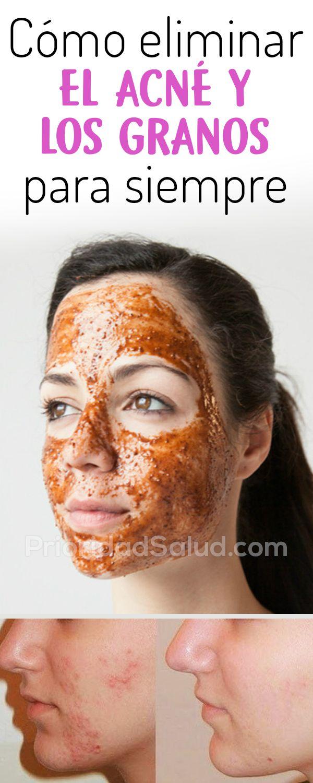 como hacer una mascarilla facial casera para los granos