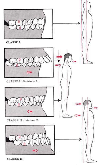 Esquema de oclusão e postura segundo Bernard Bricot