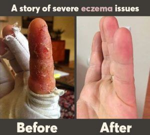 A Husband's Case of Severe Eczema