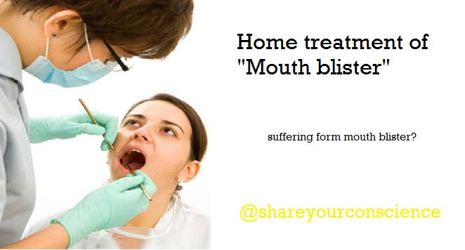 Mouth blister