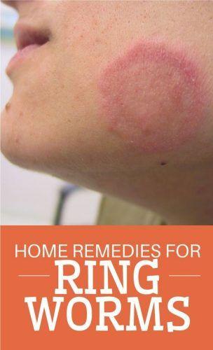 Help Bronchitis Home Remedies