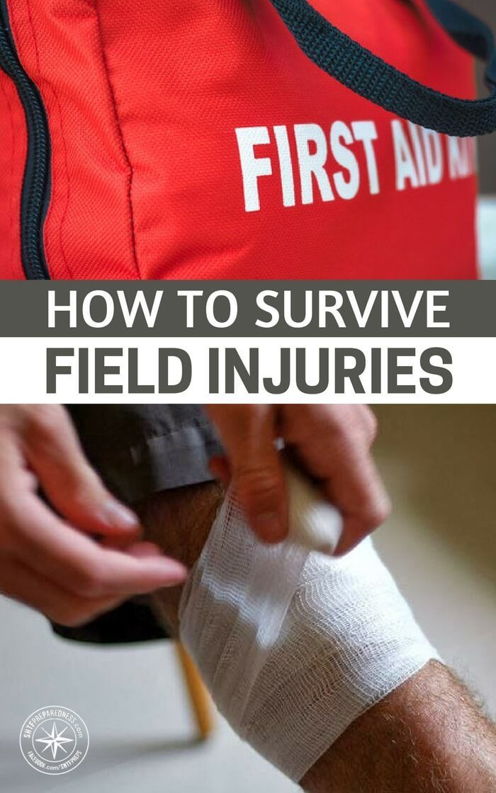 How to Survive Field Injuries — From snake bites to sore teeth, this guide will help you tackle almost any accident. All of these injuries are quite common and a little trip to the doctor can normally sort these out! What if there were no doctor? What if you were stranded or SHTF? #SHTF #firstaid #preparedness #prepping