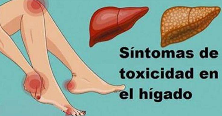 16 Señales de que tu Hígado no está funcionando bien y las toxinas se están acumulando en tu cuerpo